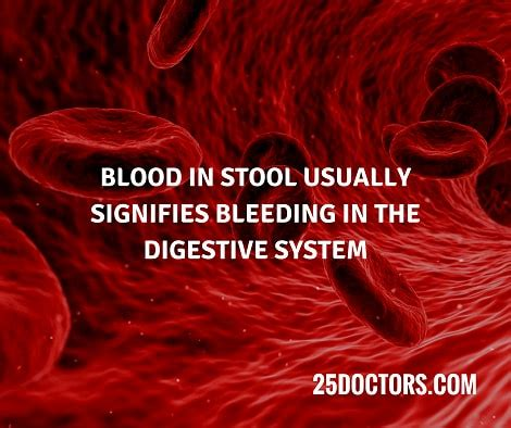 What Does Blood In Stool Indicate - blood in stool 9 possible causes and what it means