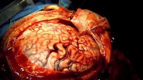 video  wondered   bleed   brain