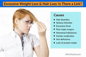 Causes Of Hair Loss Disease Hair Loss