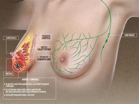 nodulo mobile al tumore al i possibili segnali corriere it