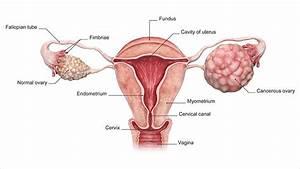 Ovarian Cancer Is Not A  U0026 39 Silent Killer U0026 39