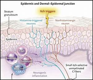 Chronic Pruritus Requires Careful Evaluation For Primary Dermatologic Or Systemic Causes
