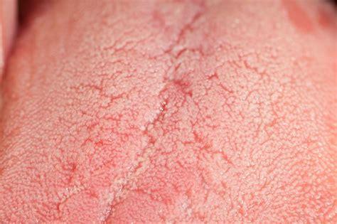 zungenkrebs symptome bilder prognose
