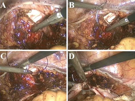 Total Laparoscopic Hysterectomy: Surgical Technique and ...
