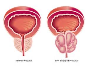 Relieve BPH Without Drugs or Surgery  Prostate Diseases Enlarged prostate