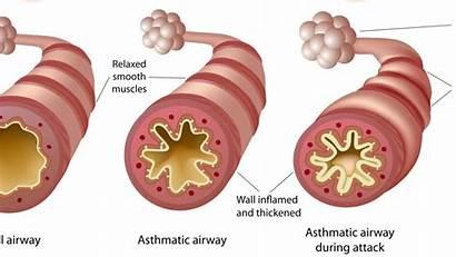 Asthma Cannabis Airway Airways Inhaler Combivent Chronic
