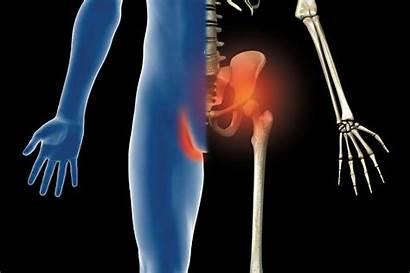 Hip Groin Pain Strain Injury