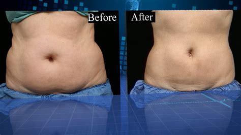 coolsculpting remove fat  slim   surgery