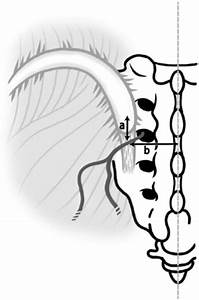 Full Text  Anatomical Study Of Middle Cluneal Nerve Entrapment