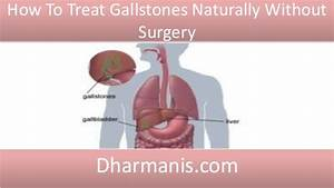 How To Treat Gallstones Naturally Without Surgery
