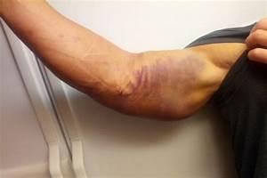 Wwe News  John Cena Tweets Picture Of Injured Arm