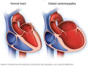 Dilated cardiomyopathy - Mayo Clinic  Dilated cardiomyopathy Cardiomyopathy