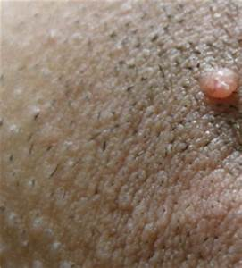 Ingrown Pubic Hair Bump | www.pixshark.com - Images ...