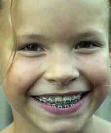 braces  denver colorado family orthodontics