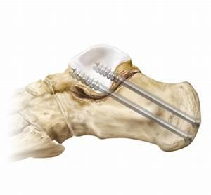 Arthrex - Subtalar Arthrodesis (Arthritis)