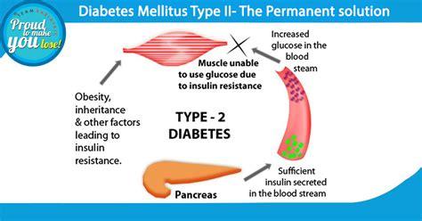 In Diabetes Mellitus Diabetes Mellitus Type 2 The Permanent Solution Dr