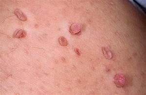 Как лечить вирус папилломы человека 16 типа у женщин лечение