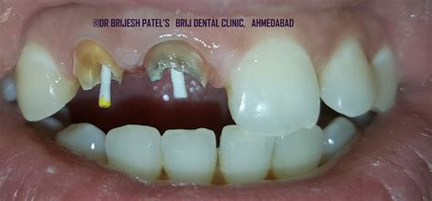dental crown  bridges treatment ahmedabad india