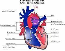 Bloedsomloop anatomie