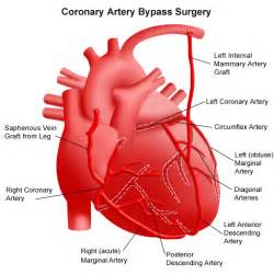 Coronary Artery Bypass Surgery - New York Presbyterian Hospital Coronary Artery Bypass Graft
