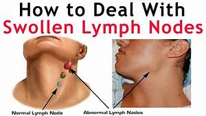 How to Deal With Lymph Nodes Neck Pain -How To Check ...