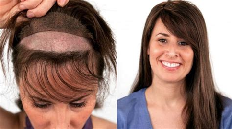 surgical hair replacement techniques  women