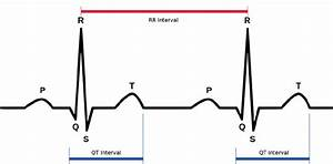 Typical ECG trace, with QT and RR intervals labeled ...