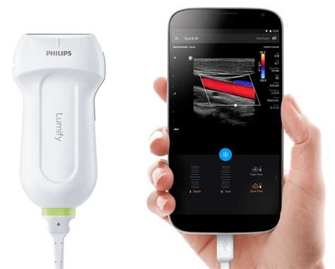 ultrasound for smartphone price philips lumify portable ultrasound machine