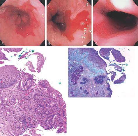 esophagus barrett biopsy mucosa cardia gastric figure