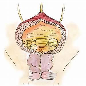Физиопроцедуры для лечения простатита