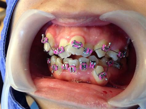 braces colors that make teeth look whiter as as new discovering the magic of dental implants