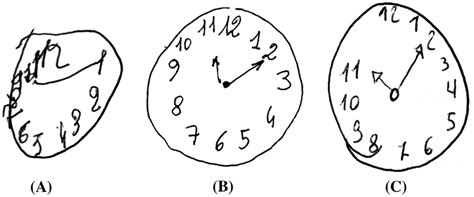 clock drawing test three exles of clock drawing test cdt using rouleau