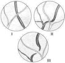 Глазное дно при артериальной гипертонии