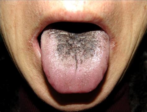 Black Hairy Tongue Causes, Symptoms And Treatments. Colour Decals. Saurabh Logo. Redesign Signs Of Stroke. Road Indian Signs. Fan Banners. Mountainscape Murals. Removable Wall Art Stickers. Idea Design Lettering