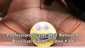 Hair Removal In Bikini Line Underarm And Legs By Ellipse