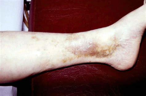 wasser in den beinen symptome