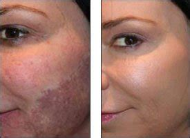 youthful glow 30 glycolic acid skin peel with free fan brush for sun damage freckles more
