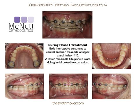 Cross Bites Treatment Photos  Before After  Orthodontics. Electrician School Chicago Walgreens 24 Hours. Cheap Website Templates Locksmith In Miami Fl. Net Speed Test In Kbps Dish Network Direct Tv. Payday Loans California Domain Name Search Uk. Bill Consolidation Bad Credit. Business Intelligence Software Solutions. Online Food Science Courses Gifts In Dubai. Capital Home Health Care New Era Hr Solutions