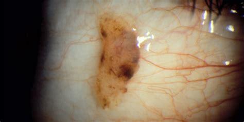 nevus eye freckle american academy  ophthalmology
