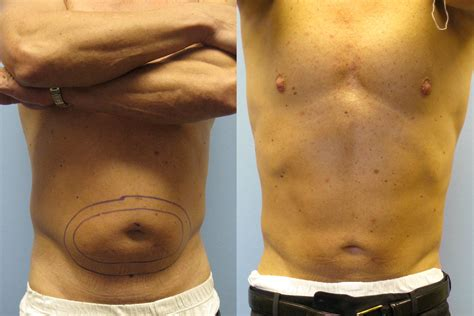 smart lipo berman cosmetic surgery