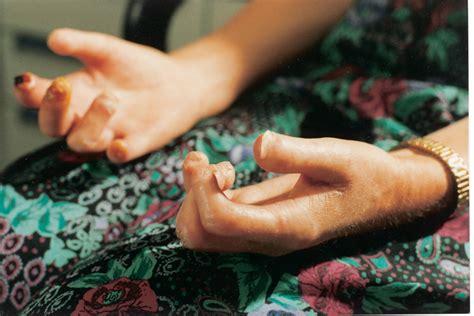 Scleroderma Causes Symptoms Treatment Scleroderma