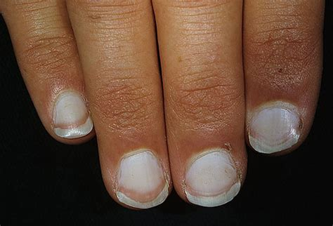 White Spots On Nail Beds by Pictures Of What Your Nails Say About Your Health Ridges