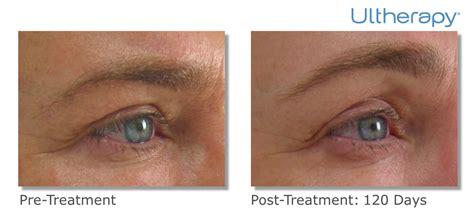 ultherapy     cosmetic dermatology