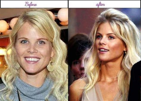 How Elin Nordegren Appears Just After Plastic Surgery ...