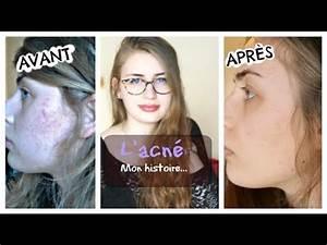 Avant Après : parlons acn roaccutane mon exp rience photos avant apr s youtube ~ Melissatoandfro.com Idées de Décoration