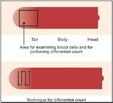 examination  blood smear
