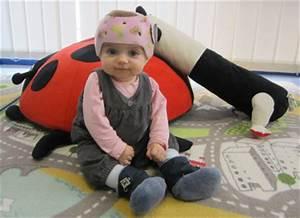Casque De Protection Bébé : ortho kern casque pour plagioc phalie positionnelle ~ Dailycaller-alerts.com Idées de Décoration
