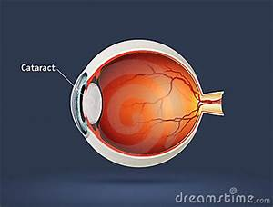 Human Eye - Cataract Stock Image