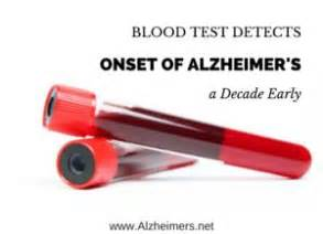 17 Best images about Health- Alzheimers & Dementia on ...