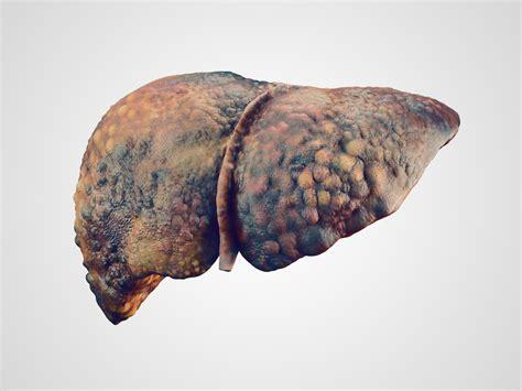 liver cancer screening rates  improve newsroom ut